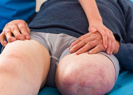 piernas hombre: Médico que den apoyo a hombre mayor con la pierna amputada, está en desventaja.