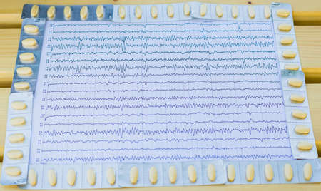 EEG interpretation rezults after epilepsy with anticonvulsant medication. Stock Photo