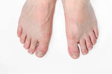 Nail fungus on the toes of male feet. Onychomycosis. White background Stok Fotoğraf