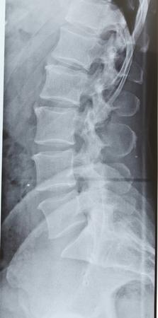 spinal column: Slab of a spinal column of a man. Stock Photo