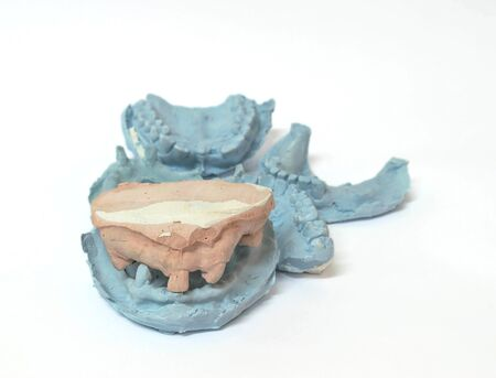 prosthodontics: Denture and implant production: variety of dental plaster molds and imprints with metal stock trays