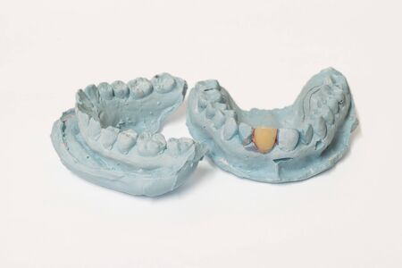 prosthodontics: Denture and implant production: pair of dental plaster molds