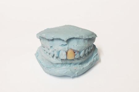 prosthodontics: Protesi e dell'impianto di produzione: coppia di stampi in gesso dentale