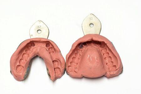 laboratorio dental: moldes de laboratorio dental Foto de archivo