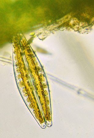 Diatom, under the microscope Reklamní fotografie - 69858150