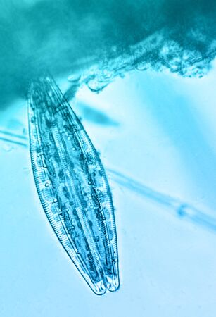 Diatom, under the microscope
