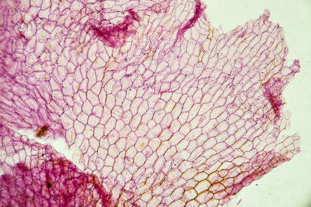 Microscopic preparation, tissue plant, stomata