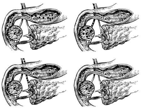 pancreas: El jugo pancre�tico es un l�quido secretada por el p�ncreas Vectores