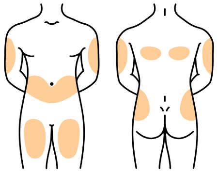 sitios de inyección de insulina en el cuerpo humano Ilustración de vector