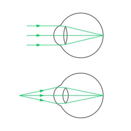 Normal vision Illusztráció