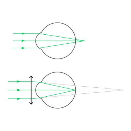 Hyperopia (hypermetropia, farsightedness) and hyperopia correction with glasses