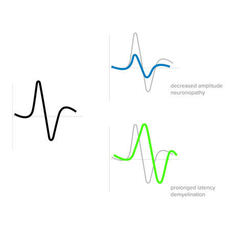Graphic waves of electromyographic medical examination - Vector