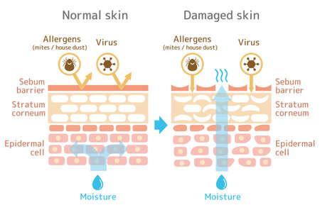 Vista seccional da pele. Ilustração de comparação do efeito de proteção entre pele saudável e pele ferida. Com texto.