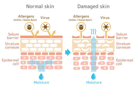 Sectional view of the skin.Comparison illustration of protection effect between healthy skin and wounded skin. With text.