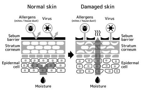 Sectional view of the skin. Comparison illustration of protection effect between healthy skin and wounded skin. With text.