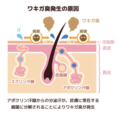 Cause of body odor illustration (Japanese) Ilustração