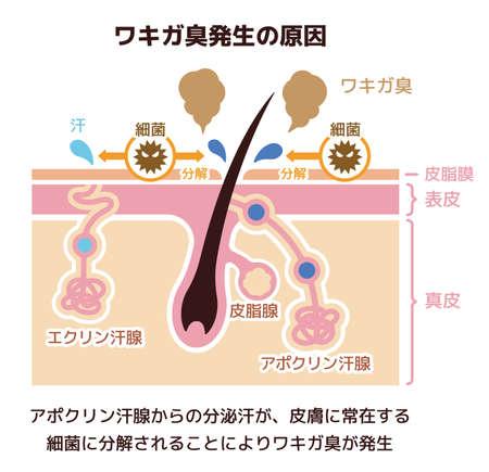 Illustration d'une cause d'odeur corporelle (japonais) Banque d'images - 93416222