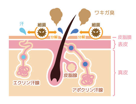 Cause of body odor illustration (JapaneseNo explanation text)