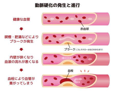 Progression of arteriosclerosis illustration (Japanese)