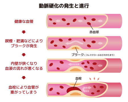 Progression of arteriosclerosis illustration (Japanese)