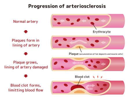 Progression of arteriosclerosis illustration (English)