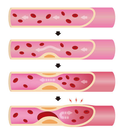 Progression of arteriosclerosis illustration (No text)