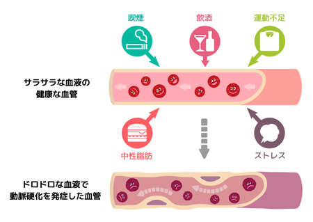 Illustration that healthy blood become muddy blood due to various unhealthy factors, causing arteriosclerosis (Japanese). Illustration