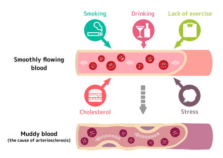 Illustration that healthy blood become muddy blood due to various unhealthy factors, causing arteriosclerosis.