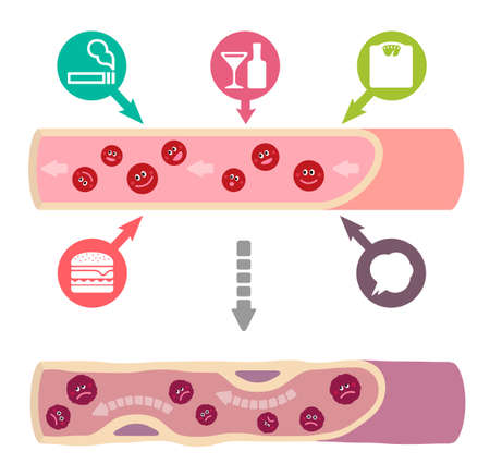 Illustration that healthy blood become muddy blood due to various unhealthy factors, causing arteriosclerosis (No text).