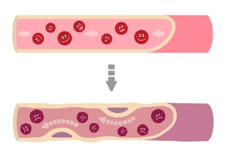 Cartoon illustration that healthy blood turns into muddy blood.