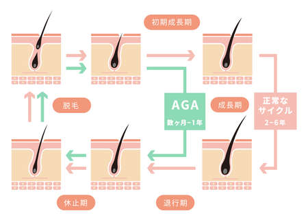 Comparative illustration of normal hair cycle and AGA (androgenetic alopecia). Standard-Bild - 97893335
