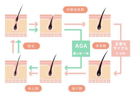 Comparative illustration of normal hair cycle and AGA (androgenetic alopecia). 版權商用圖片 - 97893335