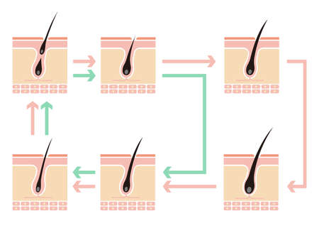 Comparative illustration of normal hair cycle and AGA (androgenetic alopecia) / no text