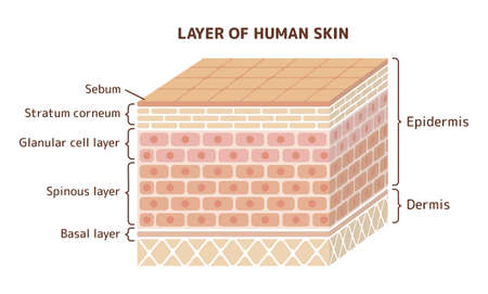Layer of damaged skin illustration