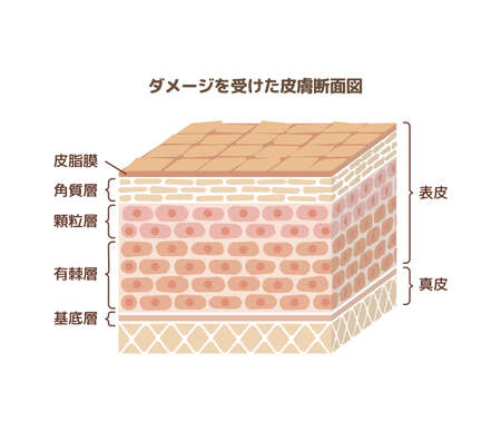 Layer of human skin illustration  japanese