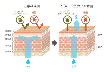Sectional view of the skin.Comparison illustration of protection effect between healthy skin and wounded skin / japanese