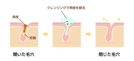 Structure illustration of pores  Clear keratotic plug (whiteheads, blackheads) with cleansing.