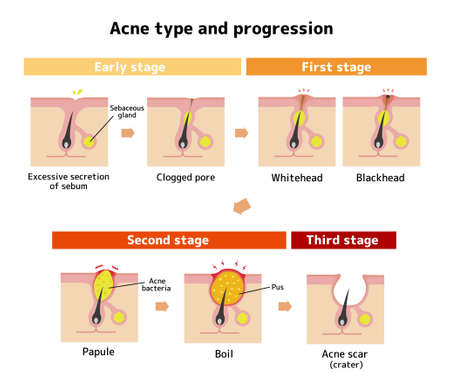 Acne types and progression illustration
