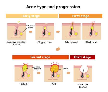 Tipos de acné e ilustración de progresión.