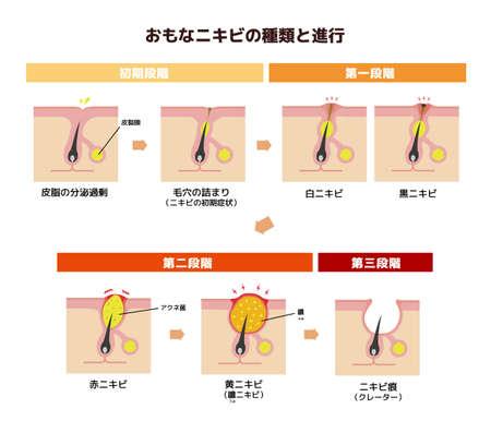 Acne types and progression illustration