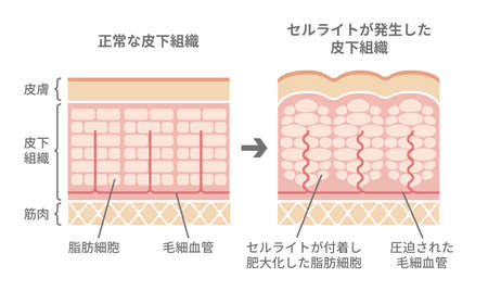 Illustrazione comparativa della pelle normale e della pelle della cellulite (giapponese)