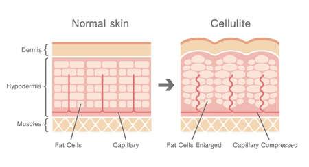 Illustrazione comparativa della pelle normale e della pelle della cellulite