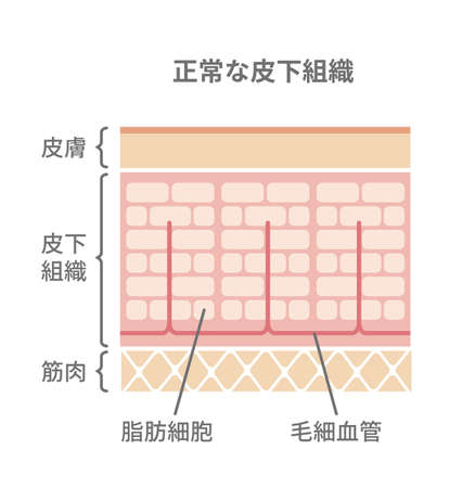 Normal skin illustrtion (Japanese) Illustration