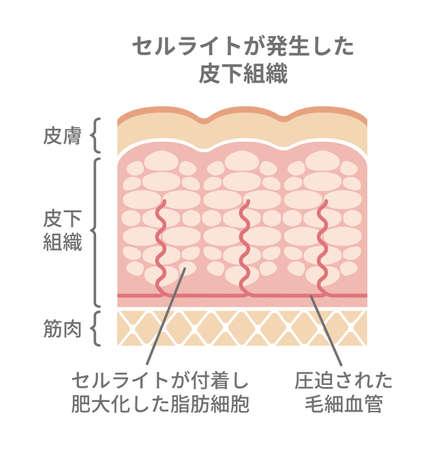 Cellulte's skin llustraton (Japanese)