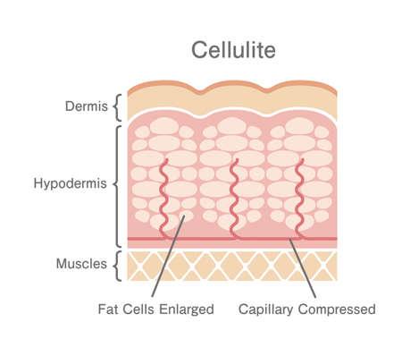 Cellulite's skin illustration Illustration