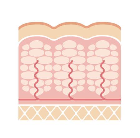Cellulite's skin illustration (No text)