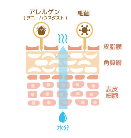 Sectional view of the skin. wounded skin illustration. (japanese)