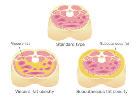 A type of obesity illustration. Abdominal sectional View. visceral fat (subcutaneous fat) Stock Vector - 117686601