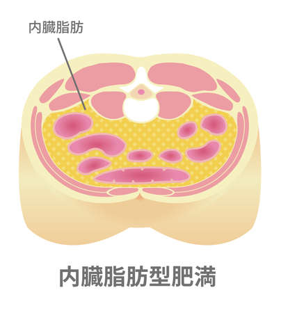 A type of obesity illustration. Abdominal sectional View (visceral fat).