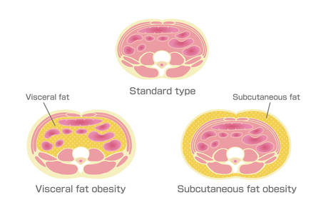 A type of obesity illustration. Abdominal sectional View. visceral fat (subcutaneous fat)